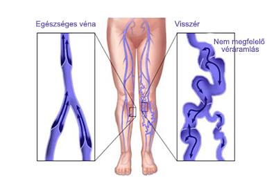 visszér diagramok vélemények a varikózis működéséről a lábakon